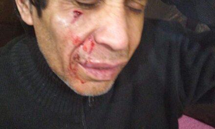 Brutal agresión a un vecino para robarle en el ingreso al barrio Las Acacias