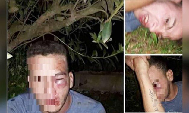 Misiones: Un hombre pactó un encuentro con una nena de 12 años y la familia lo engañó, lo golpeó y lo entregó a la Policía